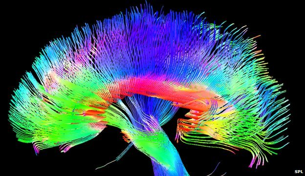 Brain scans revealed artists have more grey matter in parts of their brains